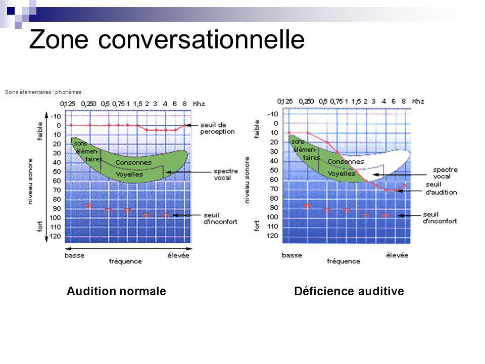 Sons élémentaires : phonèmes Audition normaleDéficience auditive