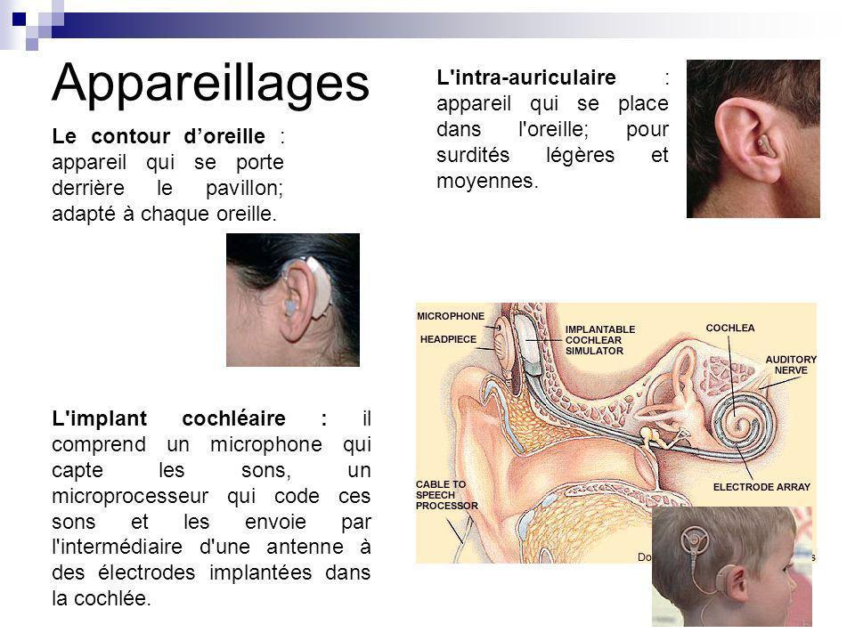 Appareillages L'implant cochléaire : il comprend un microphone qui capte les sons, un microprocesseur qui code ces sons et les envoie par l'intermédia