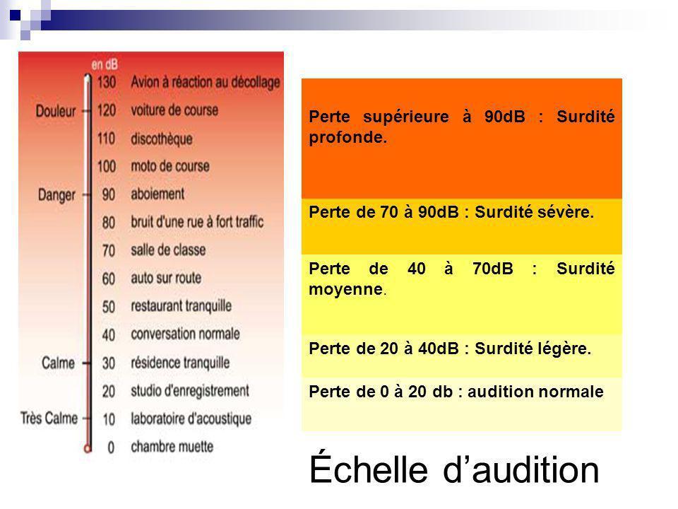 Échelle daudition Perte de 0 à 20 db : audition normale Perte de 20 à 40dB : Surdité légère. Perte de 40 à 70dB : Surdité moyenne. Perte de 70 à 90dB