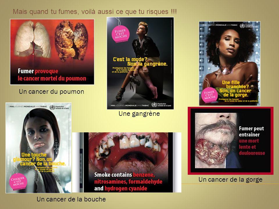 Un cancer de la bouche Un cancer du poumon Un cancer de la gorge Une gangrène Mais quand tu fumes, voilà aussi ce que tu risques !!!