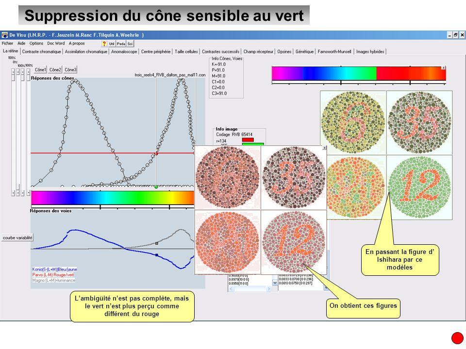 Suppression de 1 à 3 cônes La suppression des 3 cônes se traduit par une vision en noir et blanc naturellement
