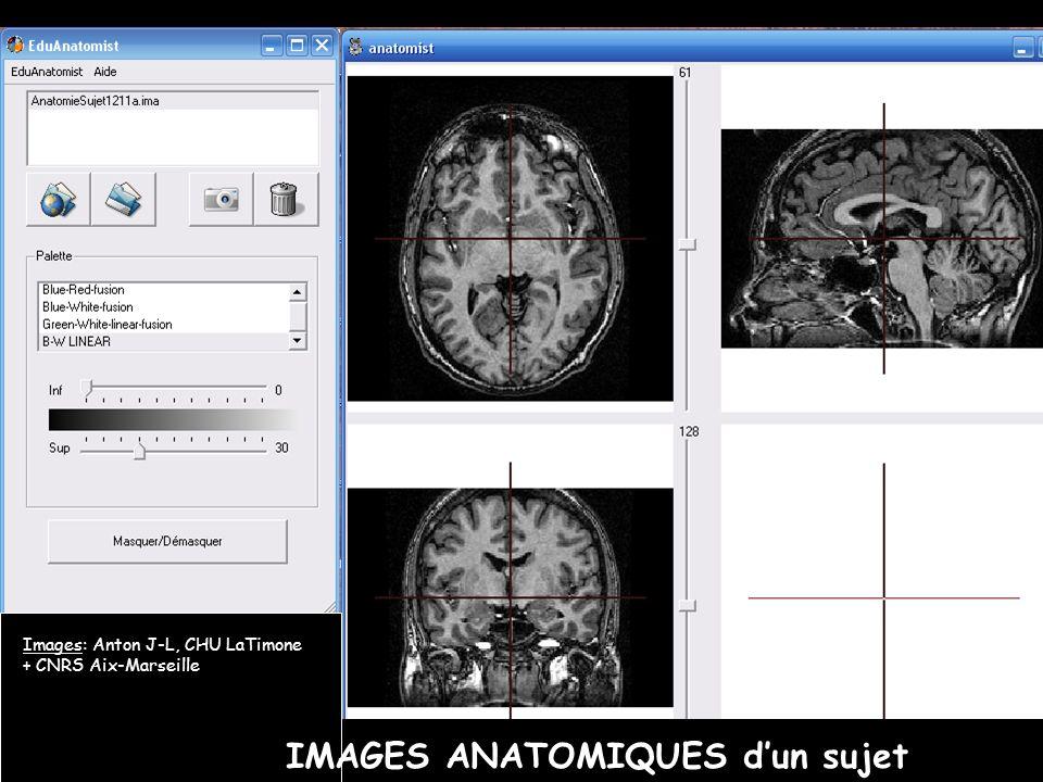 IMAGES ANATOMIQUES dun sujet Images: Anton J-L, CHU LaTimone + CNRS Aix-Marseille
