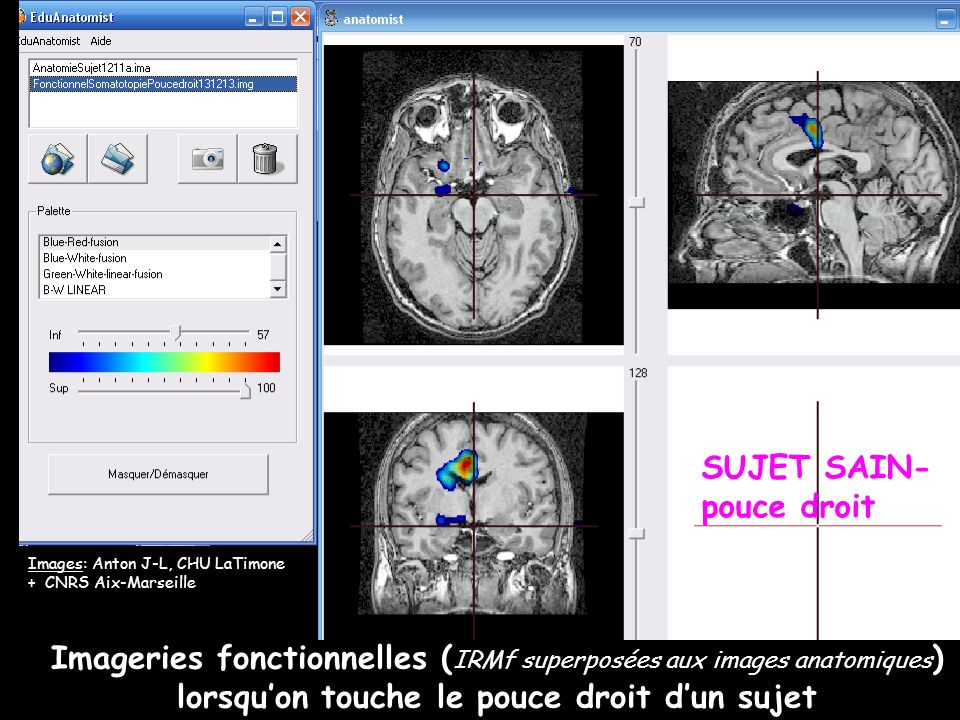 Imageries fonctionnelles ( IRMf superposées aux images anatomiques ) lorsquon touche le pouce droit dun sujet Images: Anton J-L, CHU LaTimone + CNRS A