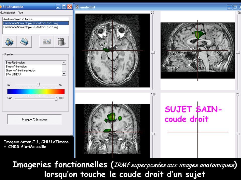 Imageries fonctionnelles ( IRMf superposées aux images anatomiques ) lorsquon touche le coude droit dun sujet Images: Anton J-L, CHU LaTimone + CNRS A