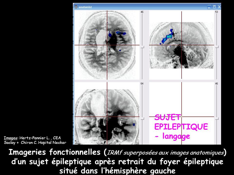 Imageries fonctionnelles ( IRMf superposées aux images anatomiques ) dun sujet épileptique après retrait du foyer épileptique situé dans lhémisphère g