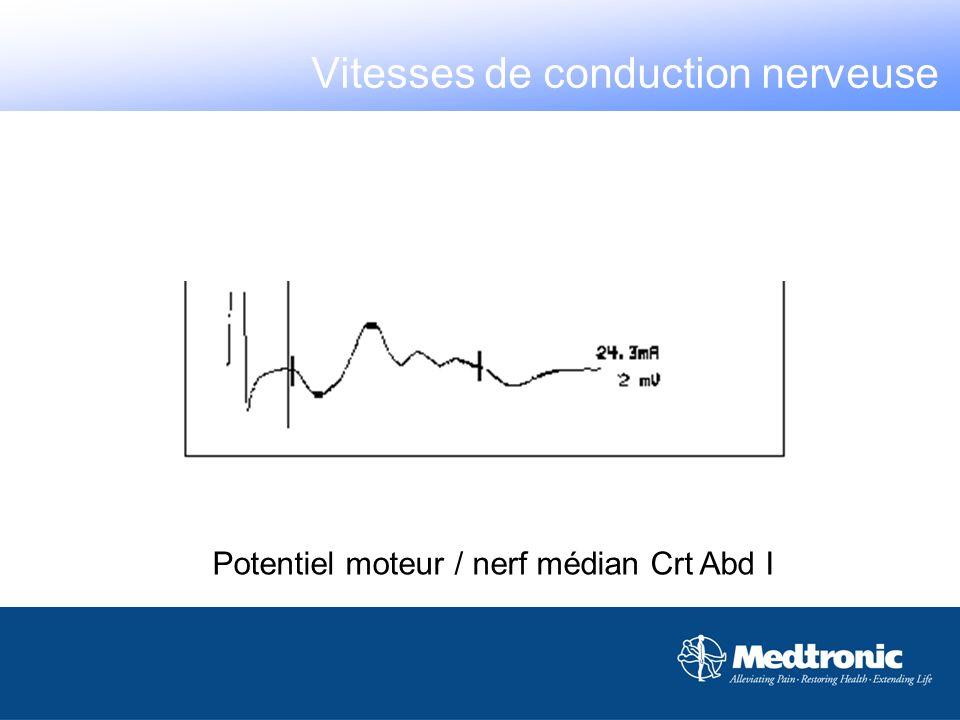 Potentiel moteur / nerf médian Crt Abd I Vitesses de conduction nerveuse