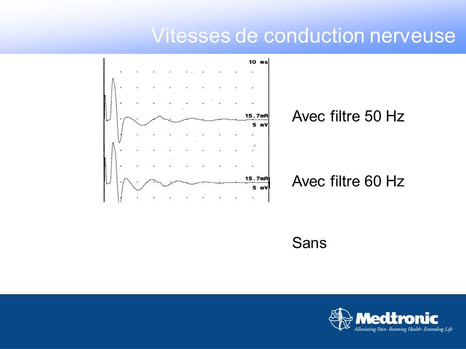 Avec filtre 50 Hz Sans Avec filtre 60 Hz Vitesses de conduction nerveuse