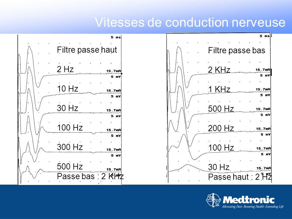 Filtre passe haut 2 Hz 10 Hz 30 Hz 100 Hz 300 Hz 500 Hz Passe bas : 2 KHz Filtre passe bas 2 KHz 1 KHz 500 Hz 200 Hz 100 Hz 30 Hz Passe haut : 2 Hz Vi
