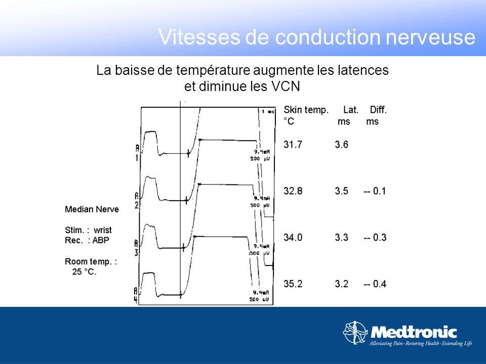 La baisse de température augmente les latences et diminue les VCN Vitesses de conduction nerveuse