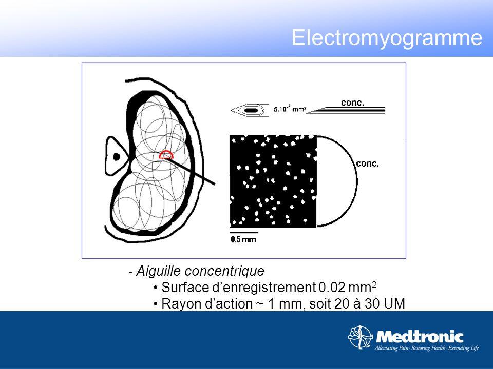 - Aiguille concentrique Surface denregistrement 0.02 mm 2 Rayon daction ~ 1 mm, soit 20 à 30 UM Electromyogramme