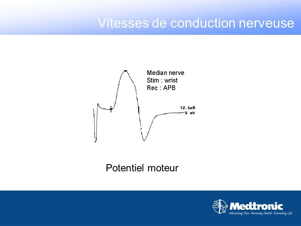 La position des électrodes affecte la forme et lamplitude du signal Vitesses de conduction nerveuse