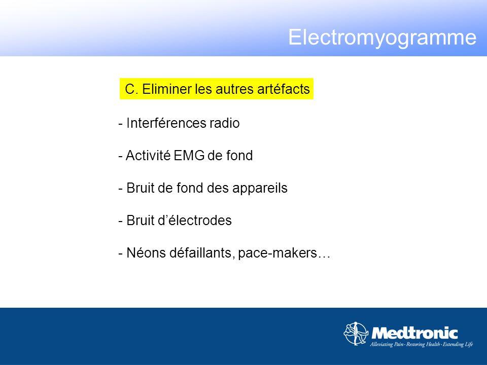 Electromyogramme C. Eliminer les autres artéfacts - Interférences radio - Activité EMG de fond - Bruit de fond des appareils - Bruit délectrodes - Néo