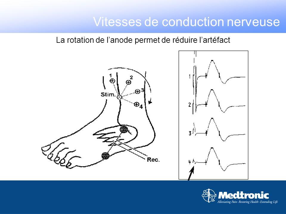 Mesurer les distances Sources derreurs : - Les nerfs à trajet profond - Les nerfs à trajet non rectiligne - La position du membre - Le déplacement de lélectrode de recueil - Le nerf peut ne pas être stimulé sous la cathode Vitesses de conduction nerveuse