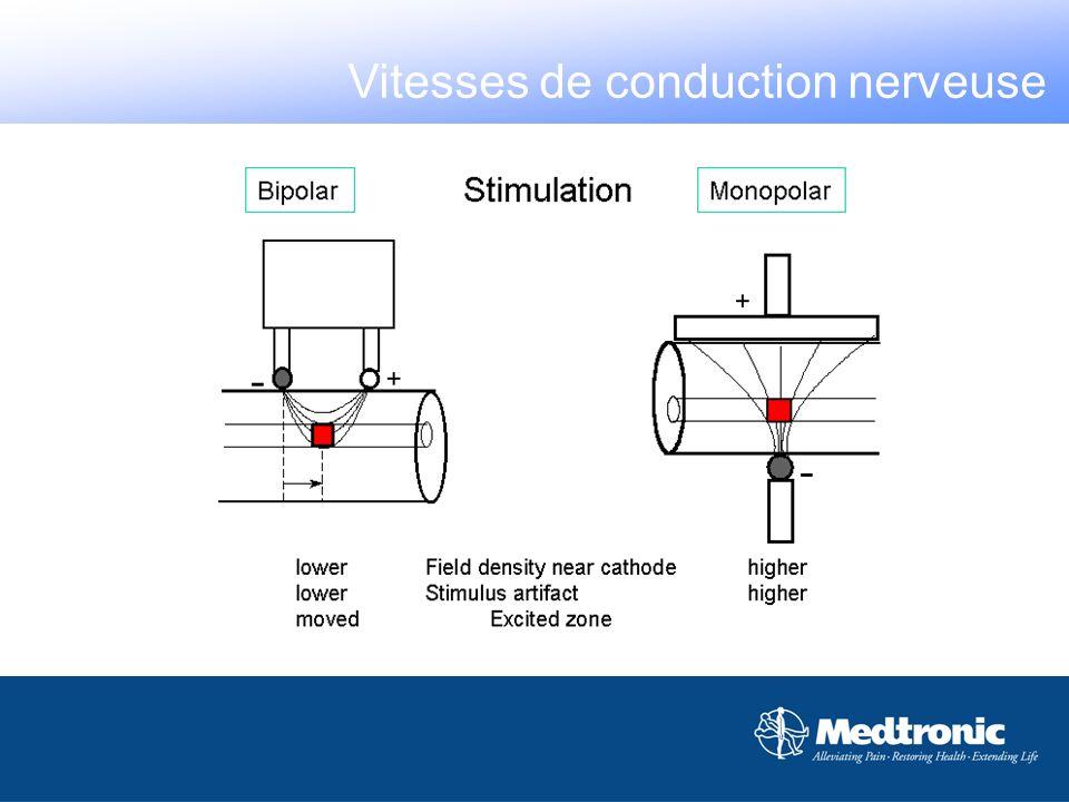 Les filtres ne doivent pas couper le signal utile Vitesses de conduction nerveuse
