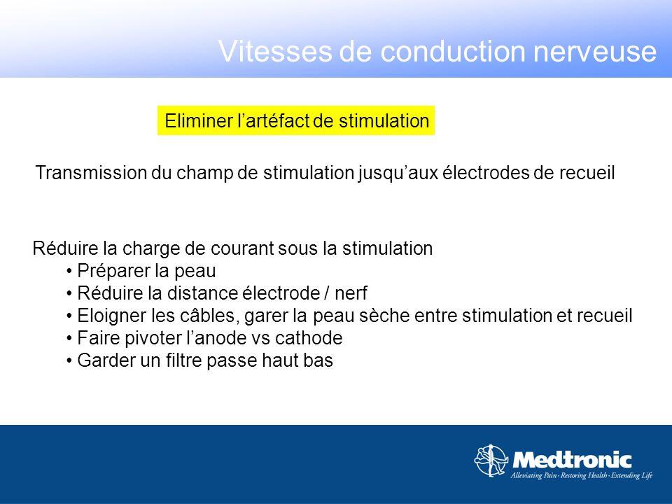 Potentiel sensitif Vitesses de conduction nerveuse