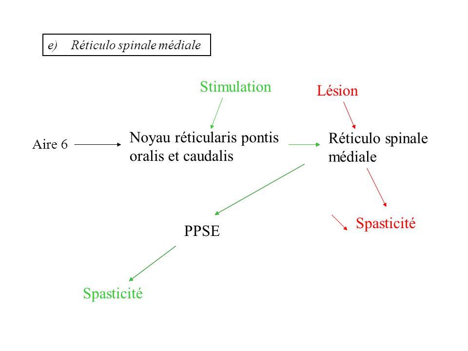 f)Noyau Vestibulaire : sa lésion entraîne une potentialisation de leffet anti-spastique dune lésion du système réticulo spinal médial Réticulo spinale médiale Aire 6 Noyau réticularis pontis oralis et caudalis PPSE Spasticité Stimulation Lésion Spasticité Lésion Noyau vestibulaire