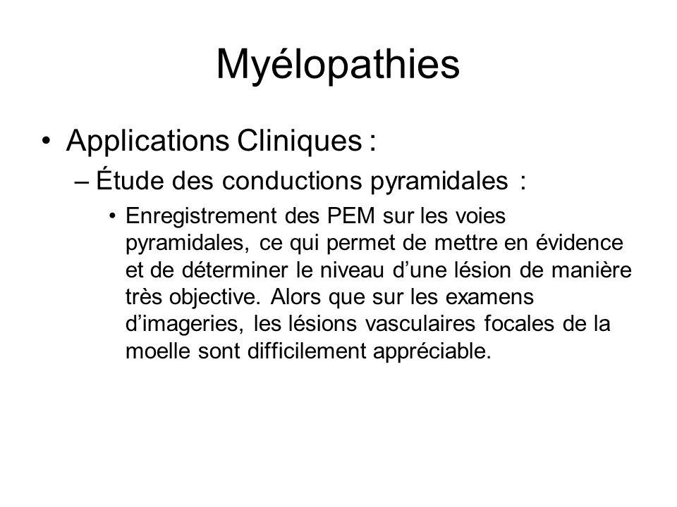 Myélopathies Applications Cliniques : –Étude des conductions pyramidales : Enregistrement des PEM sur les voies pyramidales, ce qui permet de mettre e