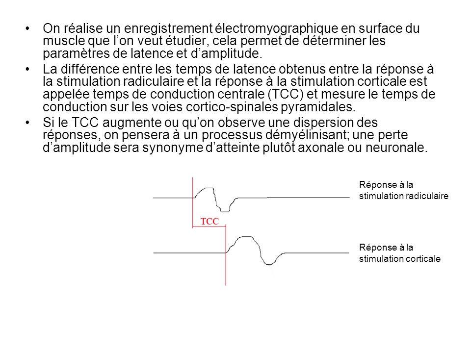 On réalise un enregistrement électromyographique en surface du muscle que lon veut étudier, cela permet de déterminer les paramètres de latence et dam