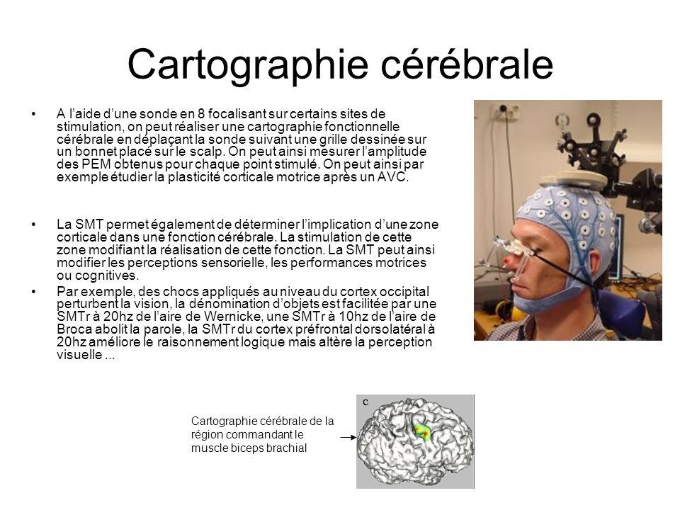 Cartographie cérébrale A laide dune sonde en 8 focalisant sur certains sites de stimulation, on peut réaliser une cartographie fonctionnelle cérébrale