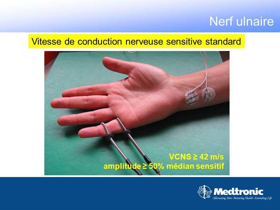 Vitesse de conduction nerveuse sensitive standard VCNS 42 m/s amplitude 50% médian sensitif Nerf ulnaire