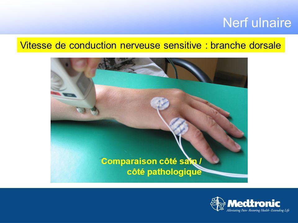 Vitesse de conduction nerveuse sensitive : branche dorsale Comparaison côté sain / côté pathologique Nerf ulnaire