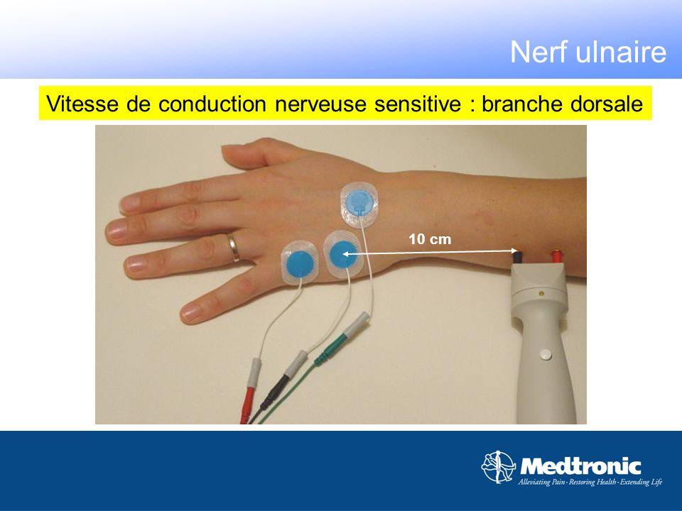 10 cm Vitesse de conduction nerveuse sensitive : branche dorsale Nerf ulnaire