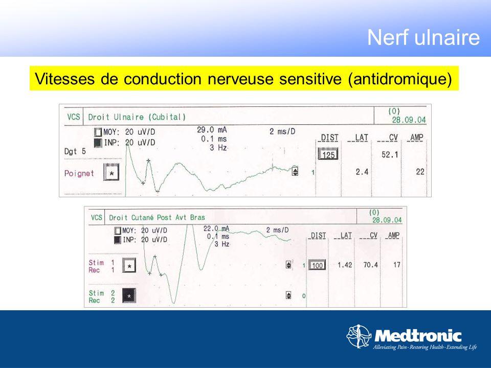 10 cm Vitesses de conduction nerveuse sensitive (antidromique) Nerf ulnaire