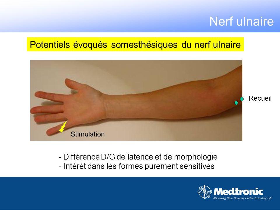 Potentiels évoqués somesthésiques du nerf ulnaire Stimulation Recueil - Différence D/G de latence et de morphologie - Intérêt dans les formes purement