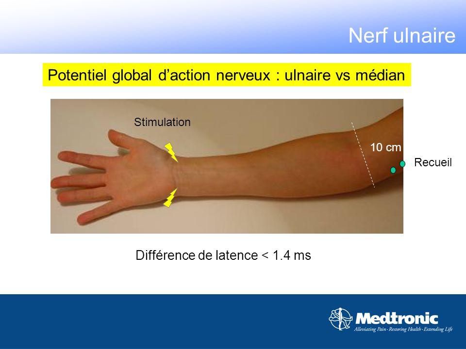 Potentiel global daction nerveux : ulnaire vs médian Stimulation Recueil 10 cm Différence de latence < 1.4 ms Nerf ulnaire