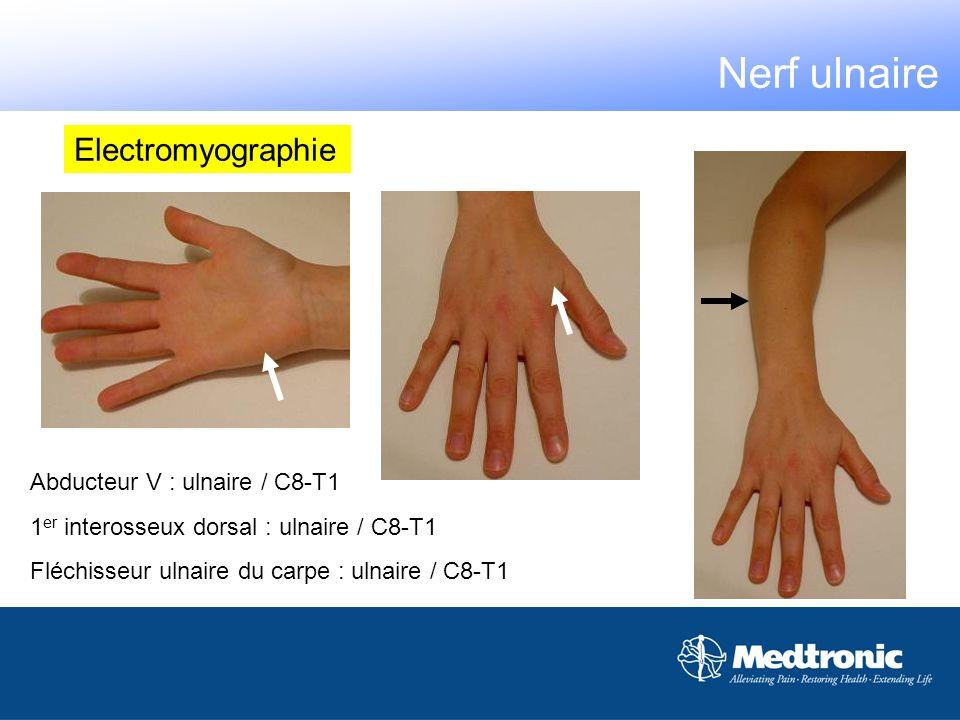 Abducteur V : ulnaire / C8-T1 1 er interosseux dorsal : ulnaire / C8-T1 Fléchisseur ulnaire du carpe : ulnaire / C8-T1 Electromyographie Nerf ulnaire