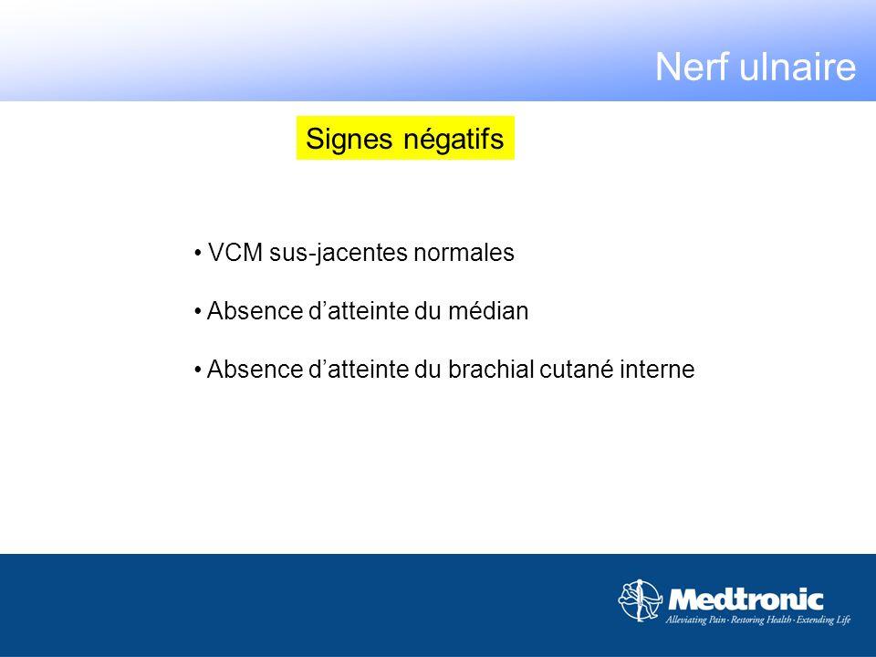 VCM sus-jacentes normales Absence datteinte du médian Absence datteinte du brachial cutané interne Signes négatifs Nerf ulnaire