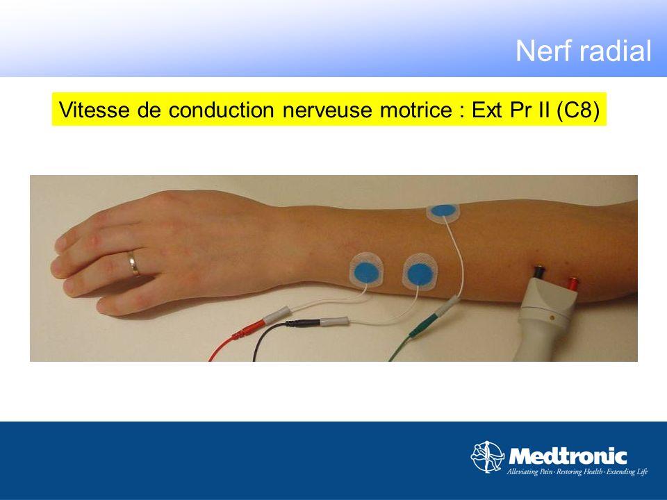 Vitesse de conduction nerveuse motrice : Ext Pr II (C8)