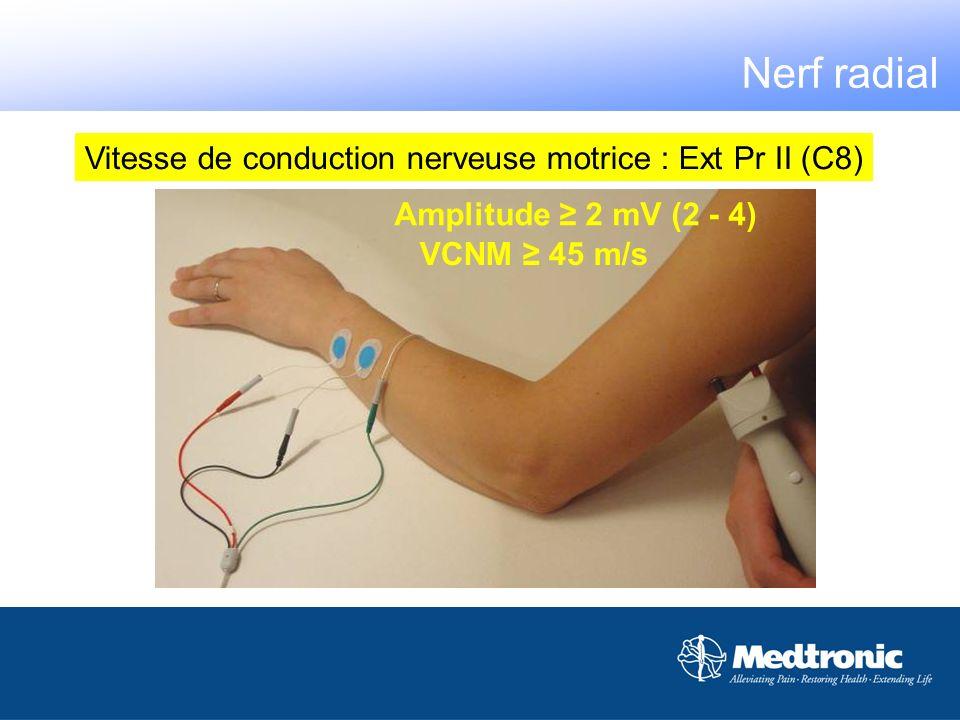 VCNM 45 m/s Amplitude 2 mV (2 - 4) Nerf radial Vitesse de conduction nerveuse motrice : Ext Pr II (C8)