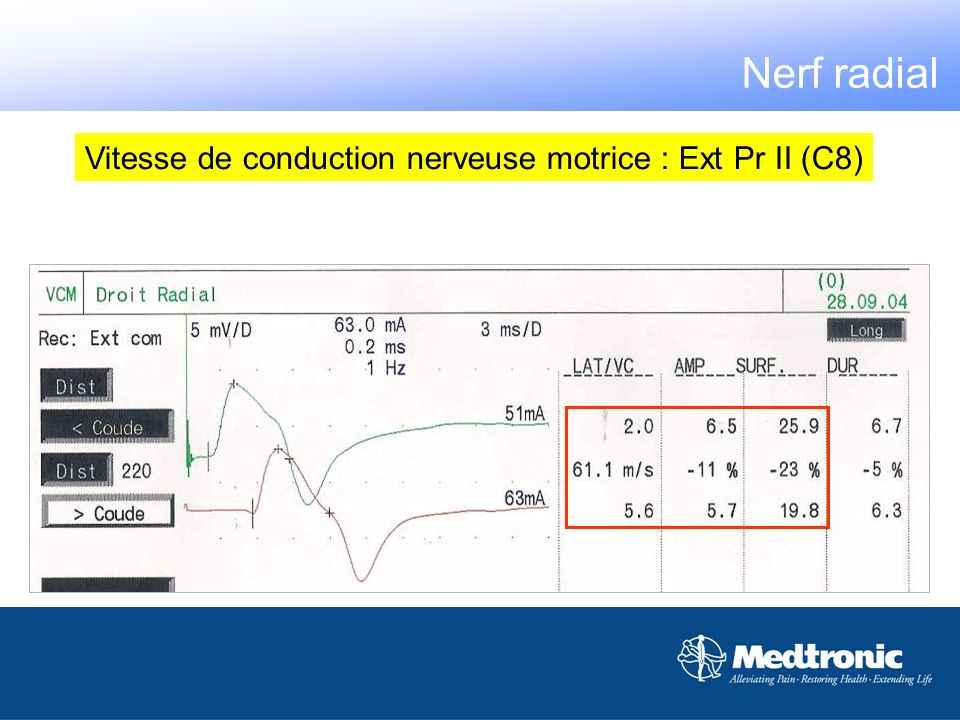 Nerf radial Vitesse de conduction nerveuse motrice : Ext Pr II (C8)