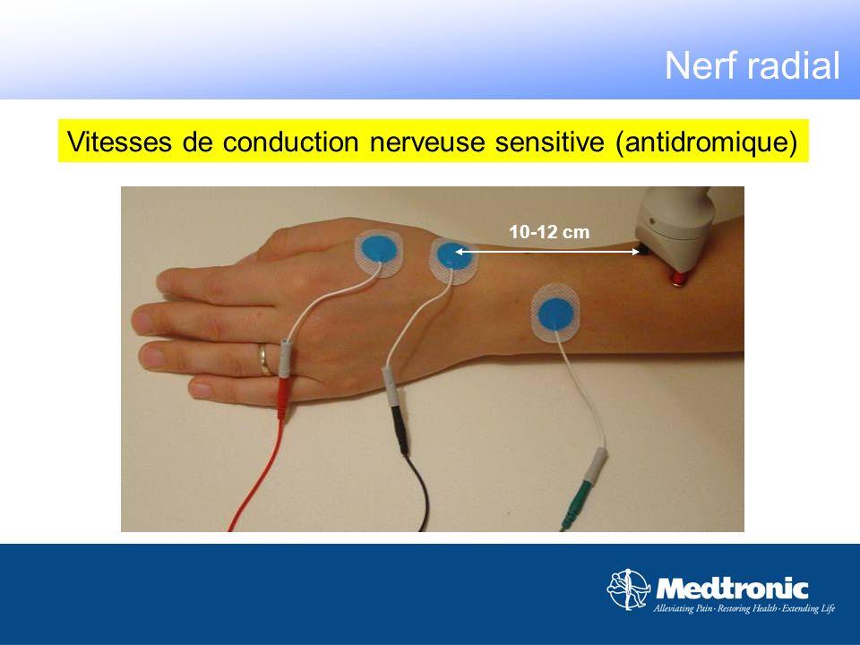 10-12 cm Vitesses de conduction nerveuse sensitive (antidromique) Nerf radial