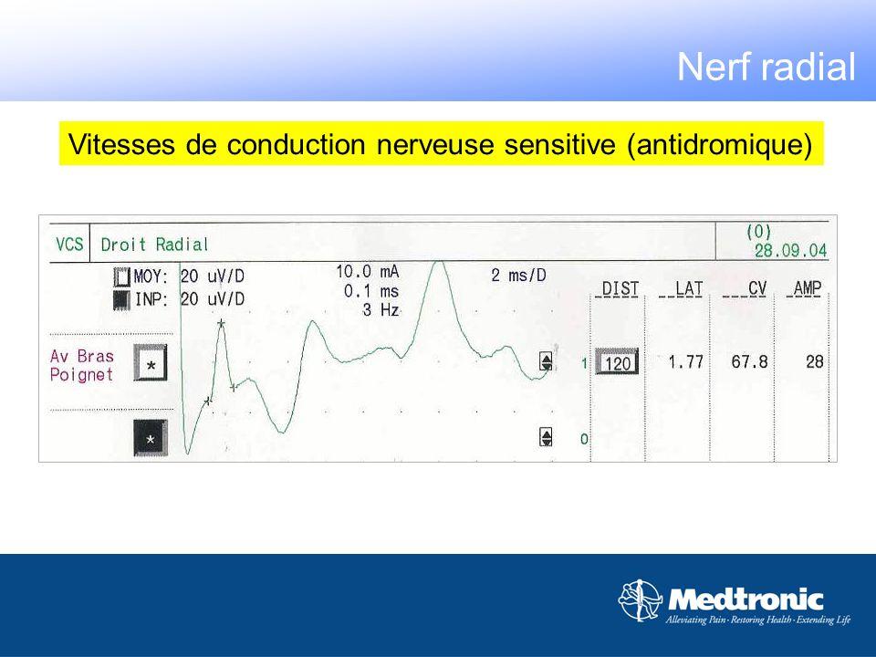 Vitesses de conduction nerveuse sensitive (antidromique)
