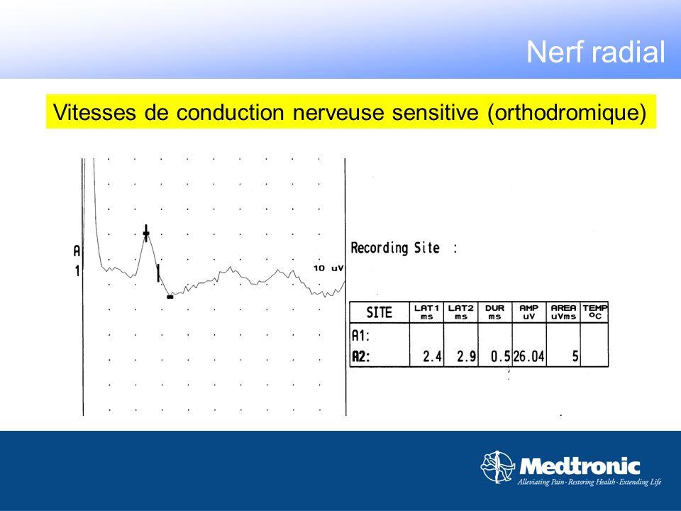 Vitesses de conduction nerveuse sensitive (orthodromique) Nerf radial