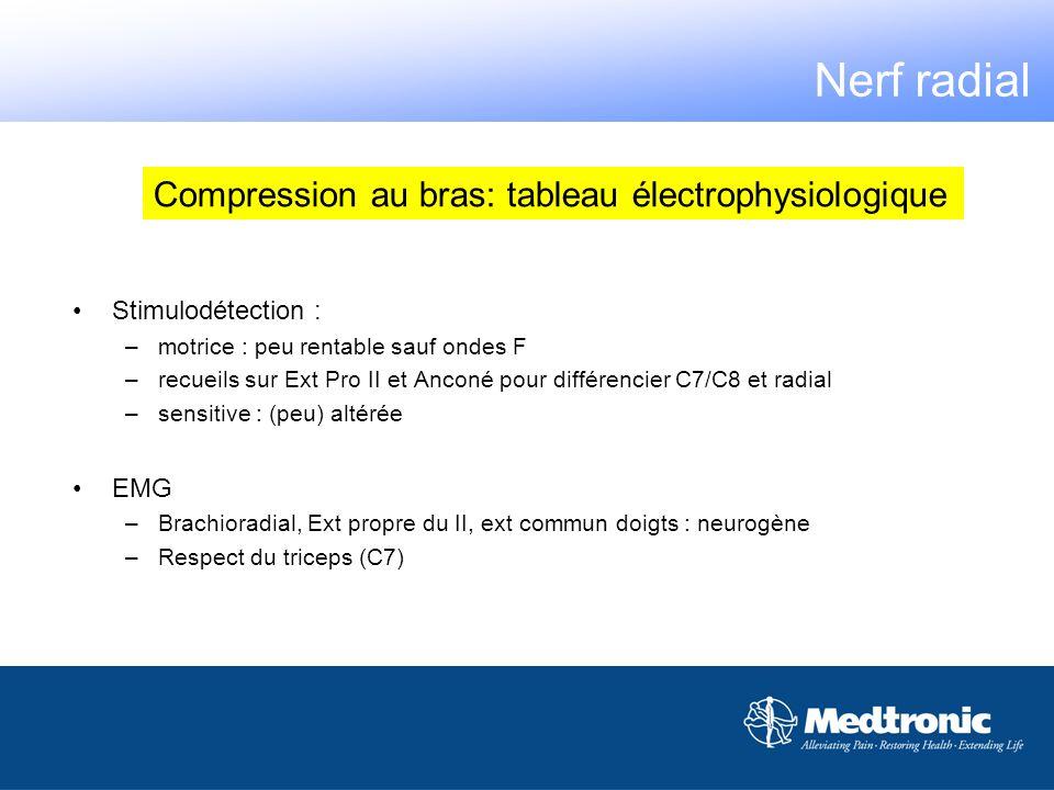 Compression au bras: tableau électrophysiologique Nerf radial Stimulodétection : –motrice : peu rentable sauf ondes F –recueils sur Ext Pro II et Anco