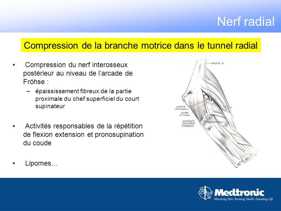 Nerf radial Compression du nerf interosseux postérieur au niveau de larcade de Fröhse : –épaississement fibreux de la partie proximale du chef superfi