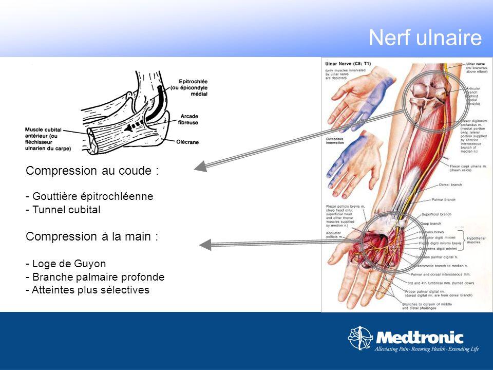Compression au coude : - Gouttière épitrochléenne - Tunnel cubital Compression à la main : - L oge de Guyon - Branche palmaire profonde - Atteintes pl