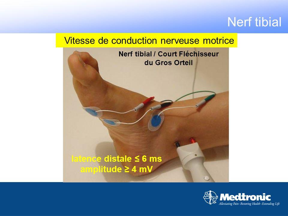 Vitesse de conduction nerveuse motrice latence distale 6 ms amplitude 4 mV Nerf tibial / Court Fléchisseur du Gros Orteil Nerf tibial