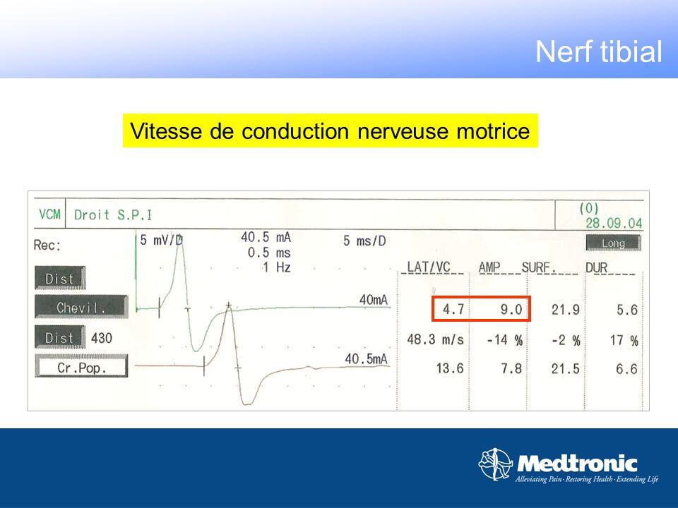 Vitesse de conduction nerveuse motrice Nerf tibial