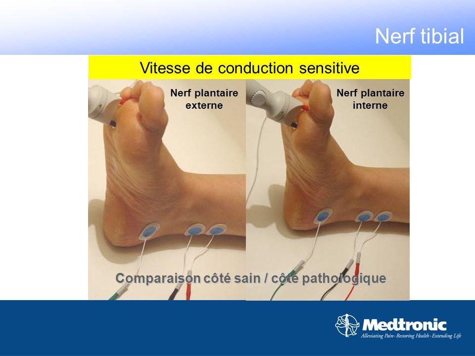 Nerf plantaire interne Nerf plantaire externe Comparaison côté sain / côté pathologique Vitesse de conduction sensitive Nerf tibial