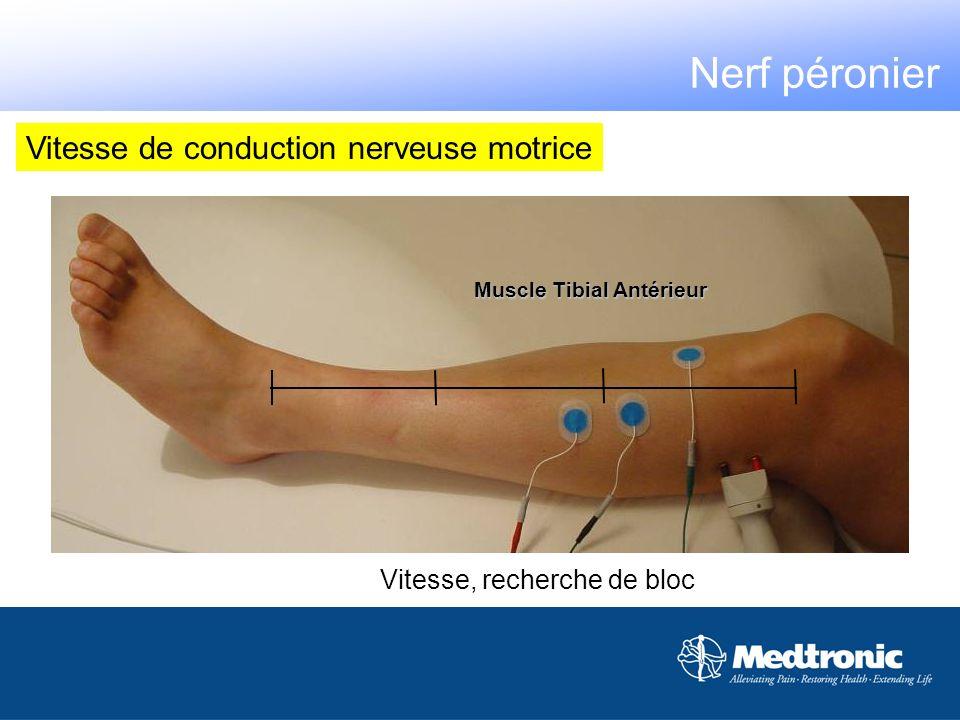 Vitesse, recherche de bloc Muscle Tibial Antérieur Nerf péronier Vitesse de conduction nerveuse motrice