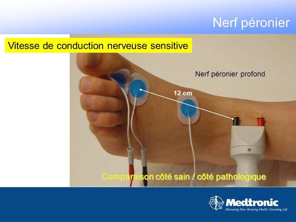 Comparaison côté sain / côté pathologique 12 cm Nerf péronier profond Nerf péronier Vitesse de conduction nerveuse sensitive