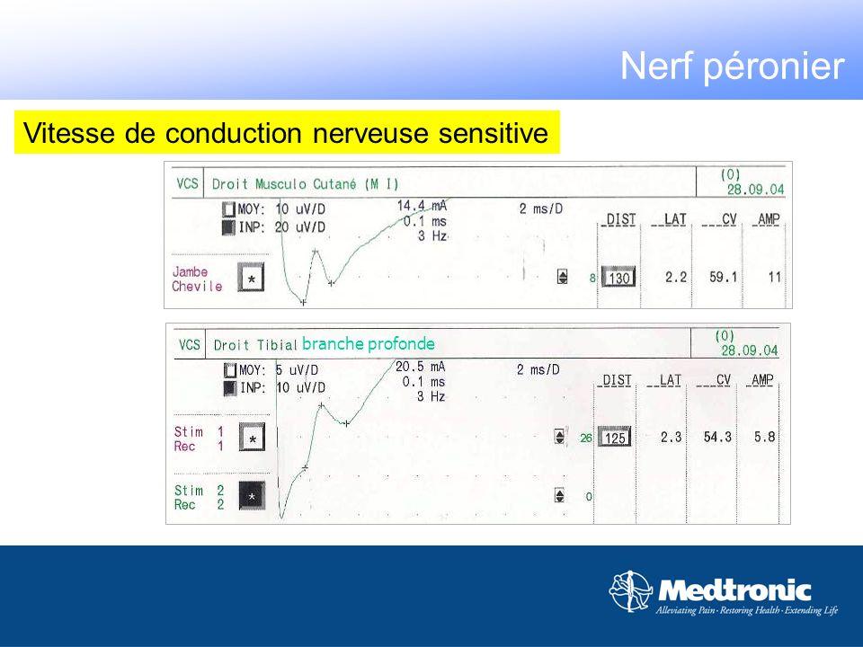 12 cm branche profonde Nerf péronier Vitesse de conduction nerveuse sensitive