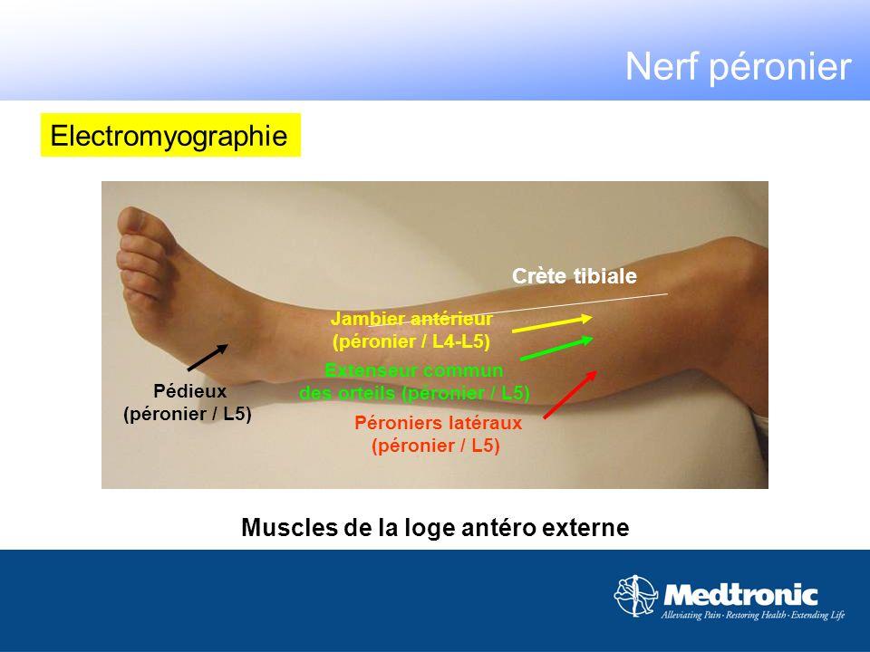 Electromyographie Muscles de la loge antéro externe Crète tibiale Jambier antérieur (péronier / L4-L5) Péroniers latéraux (péronier / L5) Extenseur co