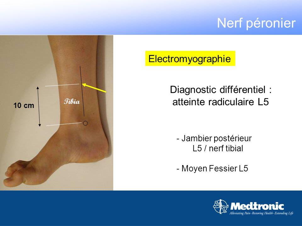 Diagnostic différentiel : atteinte radiculaire L5 - Jambier postérieur L5 / nerf tibial - Moyen Fessier L5 Tibia 10 cm Electromyographie Nerf péronier