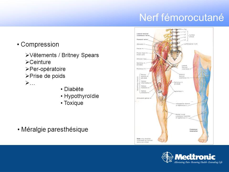 Compression Vêtements / Britney Spears Ceinture Per-opératoire Prise de poids … Diabète Hypothyroïdie Toxique Méralgie paresthésique Nerf fémorocutané