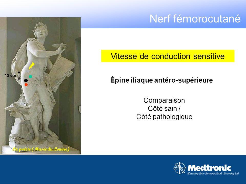 Épine iliaque antéro-supérieure Comparaison Côté sain / Côté pathologique La poésie (Musée du Louvre) 12 cm Vitesse de conduction sensitive Nerf fémor